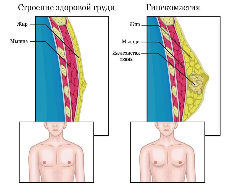 Признаки гинекомастии у мужчин