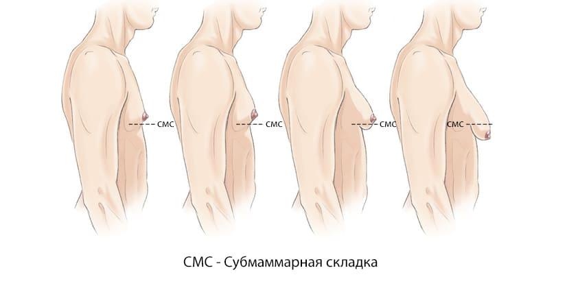 Стадии гинекомастии у мужчин