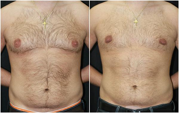 Операция по удалению гинекомастии