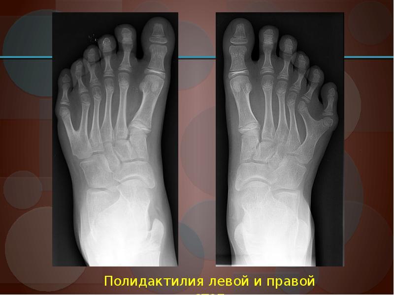Полидактилия ног