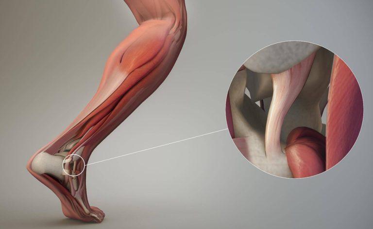 Растяжение связок: симптомы и лечение