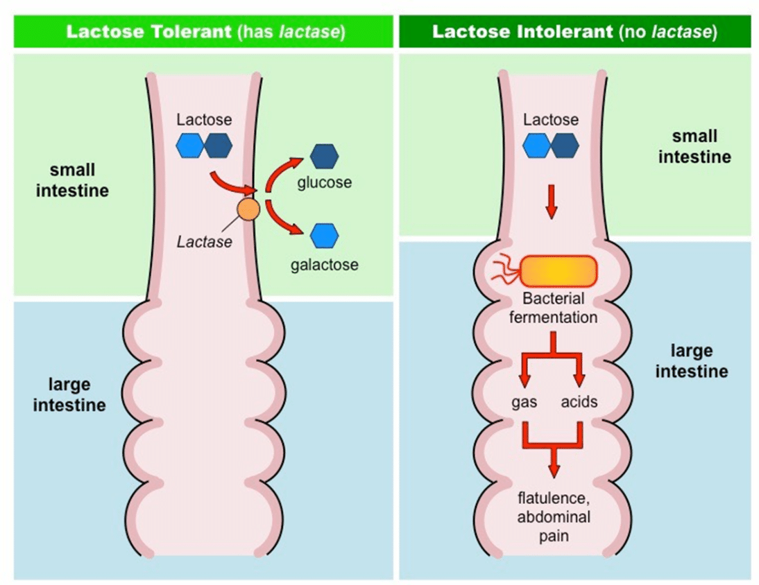 Как проявляется непереносимость лактозы