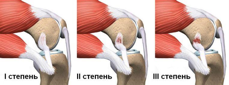 Растяжение связок под коленом