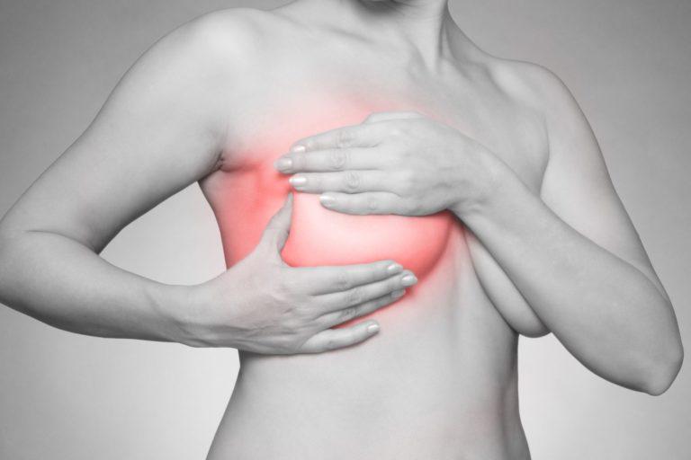 Мастит: симптомы и лечение