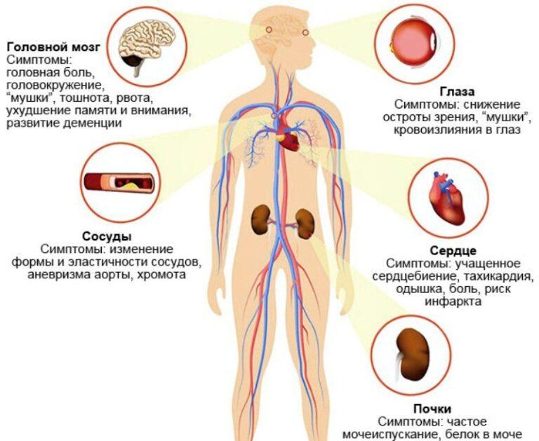 Признаки артериальной гипертензии