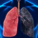 Статистические данные влияния ХОБЛ на жизнь пациентов