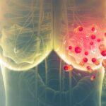 Компания «Рош» регистрирует препарат для лечения HER2-положительного рака молочной железы
