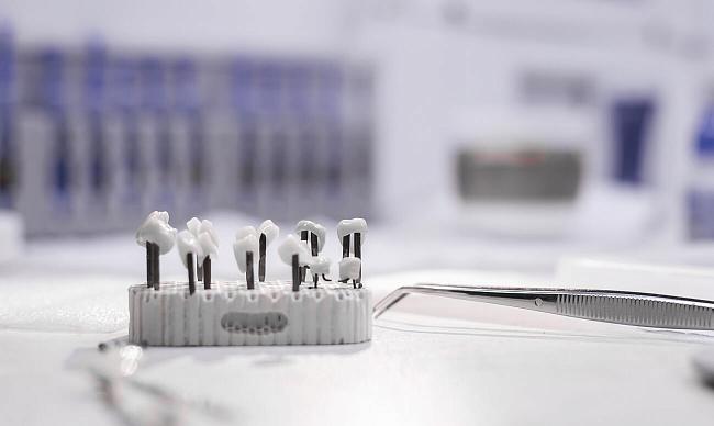Выбор имплантов: какие импланты зубов лучше поставить